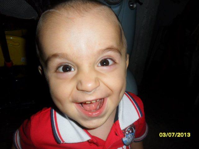 СИТЕ ДА ЈА ПОКАЖЕМЕ НАШАТА ХУМАНОСТ  На малиот Алексеј итно му треба нашата помош