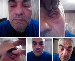 ПРЕТЕПАН ВАСИЛИС КАРТИДИС: Докторот кој протестираше во Лерин против одлуката за притвор на лицата од 27-ми април, претепан од Македонци!