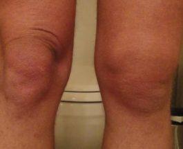 ГИ ШОКИРАШЕ И ДОКТОРИТЕ: Лекува болни колена, регенерира коски и зглобови веднаш